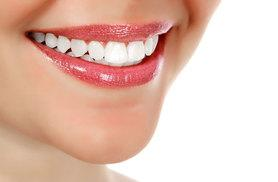 £69 instead of £450 for a one-hour LED laser teeth whitening session at Ep Dent, Kentish Town - save 85%