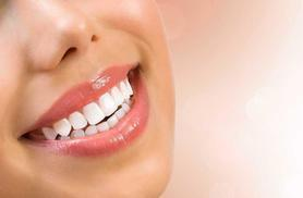 £699 for a set of upper or lower 'Six Month Smiles' clear braces, £899 for both at Aura Dental Spa, St John's Wood - save up to 56%